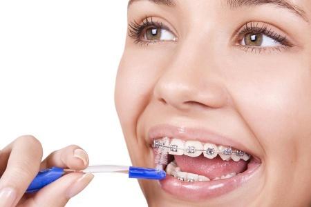Як доглядати за зубами з брекетами  f7de98cb48d31