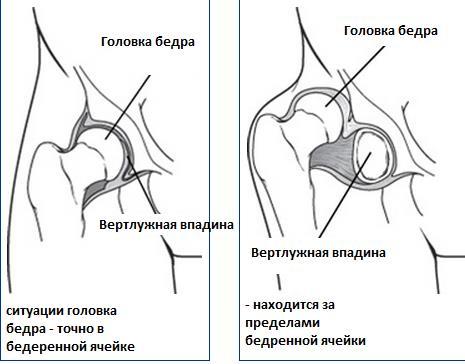 Дисплазия тазобедренных суставов 3a внутрисуставной препарат синокром.отзывы пациентов