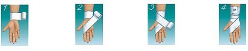 Фиксация лучезапястного сустава эластичным бинтом кальцинированная мазь для суставов